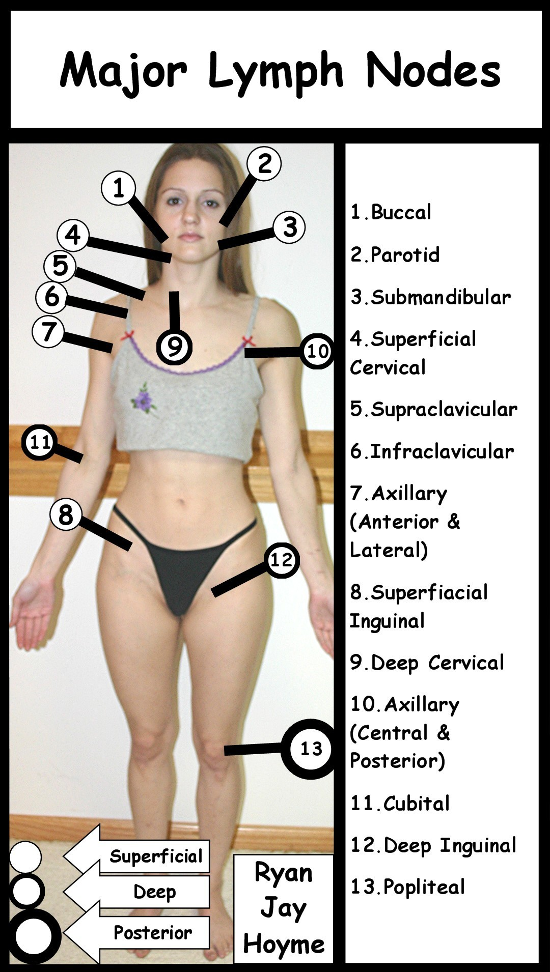 Where Are Lymph Nodes in Body